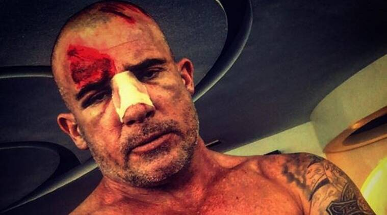 Dominic Purcell, Prison break, Dominic purcell injury, Dominic purcell instagram, Dominic purcell news, Entertainment news