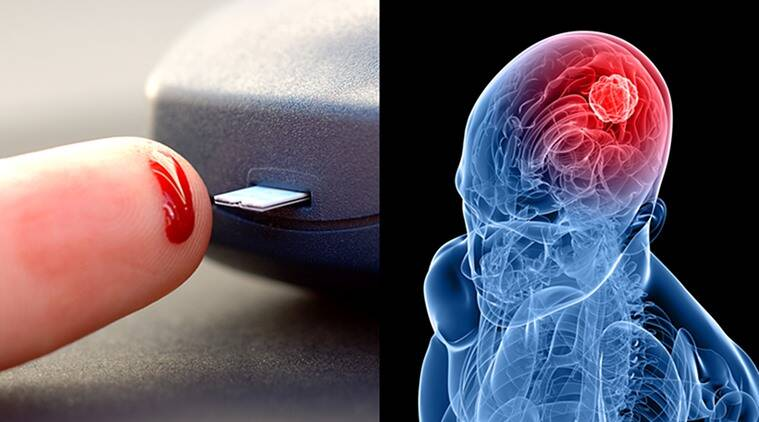 effects of high blood sugar, positive effects of high blood sugar, protective effect of high blood sugar, meningioma, meningioma treatment, meningioma cure, brain tumour treatment, brain tumour cure, meningioma brain tumour, diabetes, health news