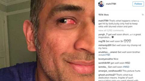 MS Dhoni hit by bail, continued to keep wickets with  'blurred vision and pain'