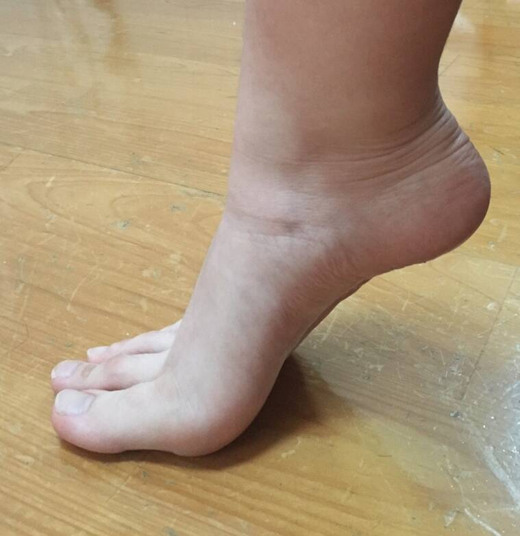Internet's Going Crazy Over This Girl Who Has Toes As Long