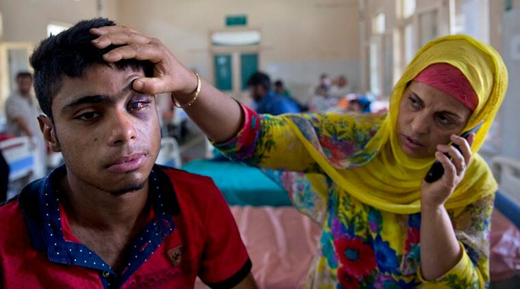 Mother of Tabish Bhat,16, whose eye was damaged after Indian government forces fired pellets at him during a protest shows his damaged eye as he rests on a hospital bed in Srinagar, Indian controlled Kashmir, Wednesday, July 13, 2016. Hospitals in India's portion of Kashmir are overwhelmed, with hundreds of wounded patients pouring in as the region reels from days of clashes between anti-India protesters and government troops. The violence erupted over the weekend after government troops killed a top leader of Hizbul Mujahideen, the largest rebel group fighting Indian rule in the troubled Himalayan region. (AP Photo/Dar Yasin)