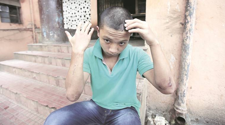arunachal teen beaten, arunachal pradesh, arunachal teen beaten in pune, pune college, pune police, Takam Todo, sassoon hospital, pune enws, india news, latest news, northeastern beaten, north eastern beaten, indian express news