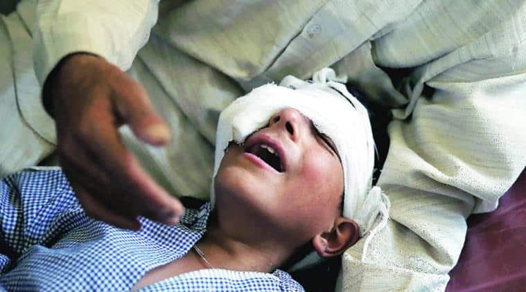 kashmir, kashmir violence, kashmir unrest, kashmir pellets, kashmir pellet guns, kashmir pellet guns injury, Kashmir protests, Jammu and Kashmir High Court, Shri Maharaja Hari Singh Hospital, SMHS Hospital, india news