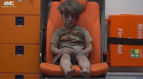 Brother of Syrian boy Omran Daqneesh dies of his wounds