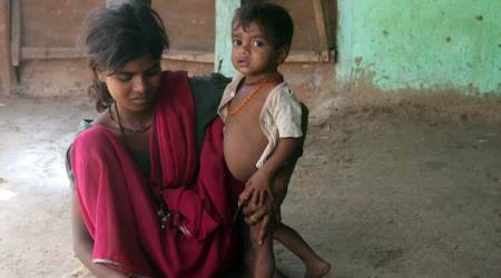 Malnutrition in India, child health, Children with stunted growth, malnutrition in indian children, malnutrition in India 10-most populous cities, Child health study, India news, indian express news