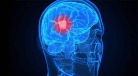 tumour, 200 year old tumour, tumour london, tumour discovered, world news, health news, lifestyle news