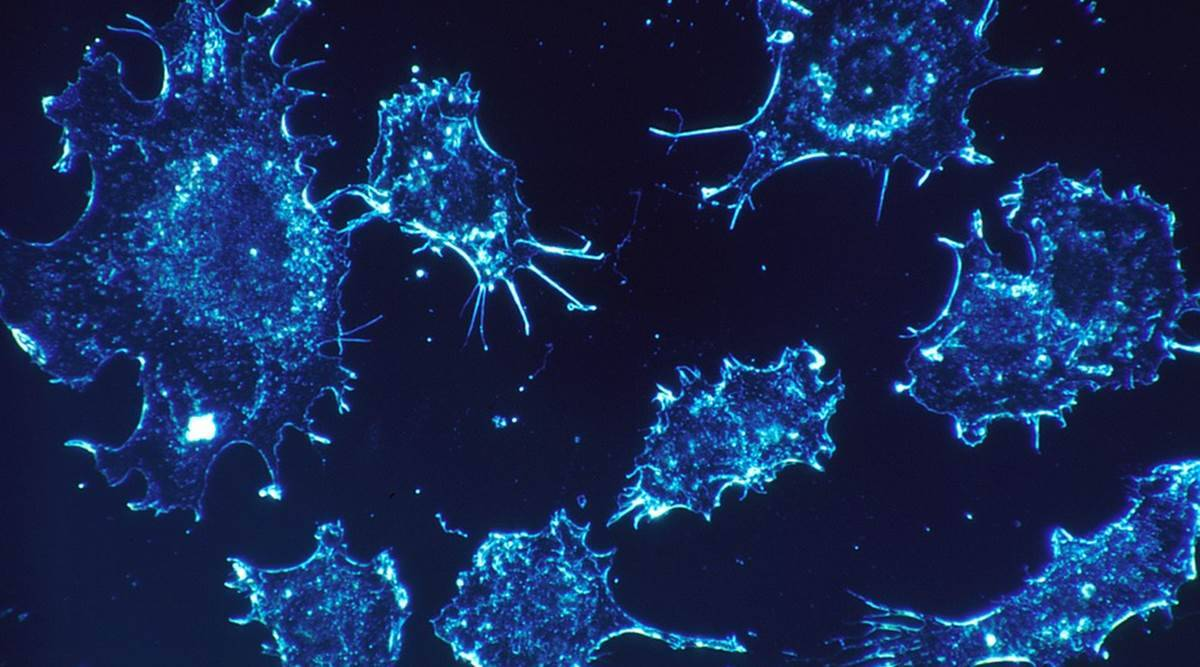 Cancer, Cancer death rate, Cancre realted death rates, cancer cure, cancer research, cancer medical research, Medical research news, latest news, International news, US medical research, world news