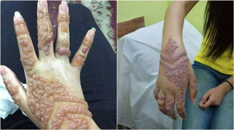 chinese mehendi, chinese mehendi viral pictures facebook, mechinese mehendi allergies Facebook, chinese mehendi allergies reason, mehendi allergies photos viral, Indian express, indian express news