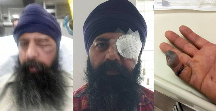 Maan Singh Khalsa was brutally assaulted on his way home. Photo posted by Sikh Coalition on Twitter