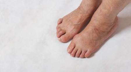 Claw Toes sign of underlying diabetes, says doctors