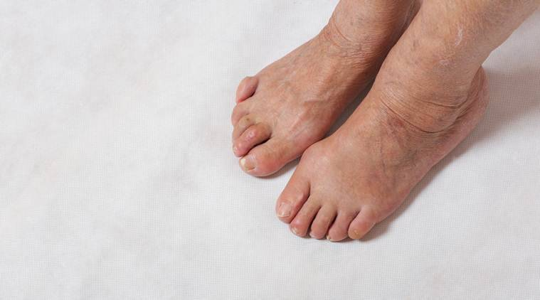 Claw Toes Sign Of Underlying Diabetes Says Doctors Lifestyle News The Indian Express