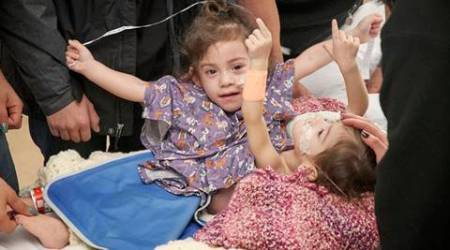 conjoined twins, US Twins, Erika and Eva Sandoval, Sandoval twins, sandoval twins operation, twins operation, Lucile Packard Children's Hospital Stanford, successfully operated, successful operation, world news, indian express news