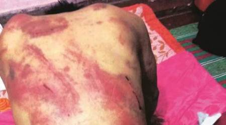 delhi, manipur man beaten, delhi manipur man, BPO worker beaten, delhi man beaten, delhi news, india news