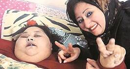 500-Kg Patient From Egypt Eman Ahmed To Be Taken To Mumbai ForTreatment
