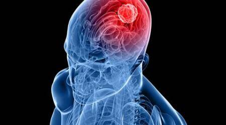 cancer, brain cancer, drugs for brain cancer, brain cancer drugs, brain cancer drugs to cure, brain cancer causes, brain cancer symptoms, brain cancer cure, brain cancer prevention, indian express, indian express news