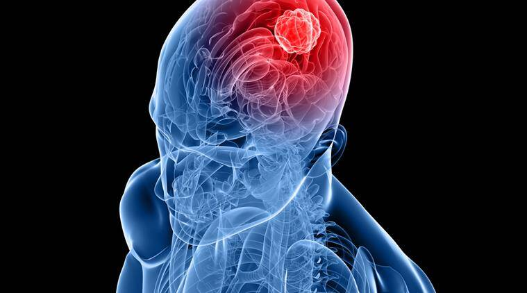 Combination of drugs may help cure brain cancer | Lifestyle News