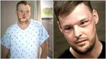 50-hour face transplant recovers US man's wounded face after 10 years