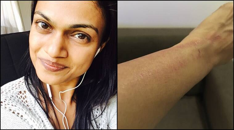 Suchitra Karthik Alleges That She Was Manhandled By Dhanush's Team?