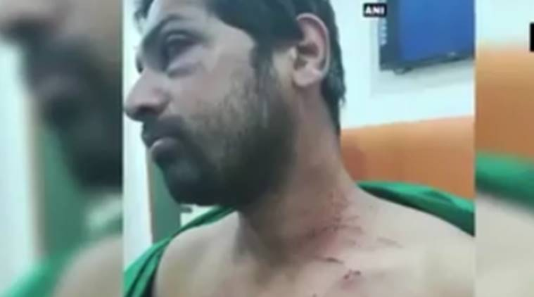 Dhule doctor beatedn, Dhule doctor assault, Dhule, maharashtra, Maharashtra doctor beated, Dhule civic hospital, deepak baid, doctor thrashed, Dhule news, india news, indian express news
