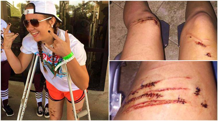 shark attack, shark bites leg, caitlyn taylor, caitlyn taylor shark attack, caitlyn taylor shark bite,17 year old shark bite, shark, indian express, indian express news
