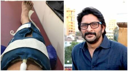 Arshad Warsi has been hospitalised after suffering a bad knee injury