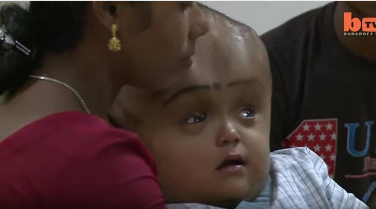 tripura girl, tripura girl with rare condition dies, swollen head, giant head, tripura girl giant head, corrective surgery, hydrocephalus, brain surgery, india news, indian express