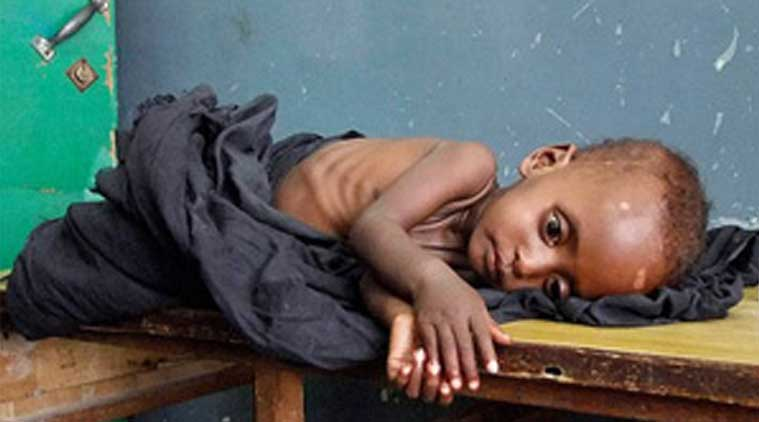 Maharashtra news, India news, Mumbai news, Malnourishment in Indian Children, Malnourishment in Children, Ready to Use Therapeutic Food, Women and Child Development,