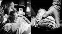 This dramatic birthing photo series is breaking the Internet for an unusual medical reason