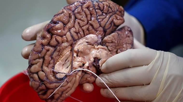 photos brains in a box how this bronx hospital is storing grey