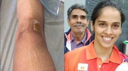 A year ago, I was getting knee surgery done and today I have a bronze medal, says Saina Nehwal