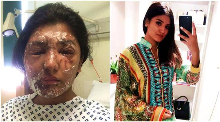 reshma khan, acid attack, acid attack survivor, acid attack recovery, acid attack survivor UK, reshma khan acid attack, reshma khan eid pictures, indian express, indian express news