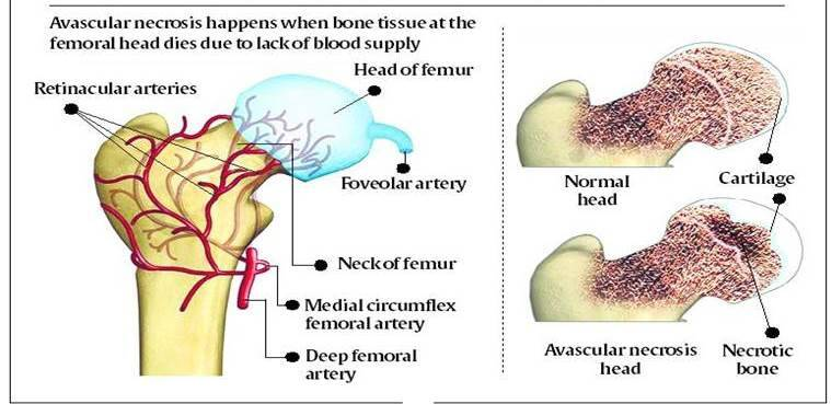Amid series of surgeries, doctors link hip damage to various ...