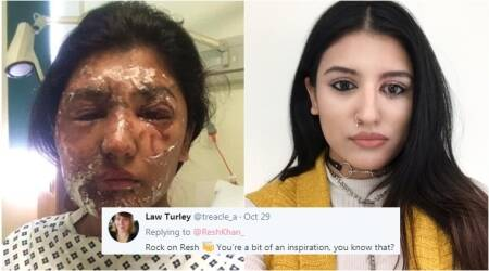 Brave acid attack survivor shares selfie on social media as inspiration for others