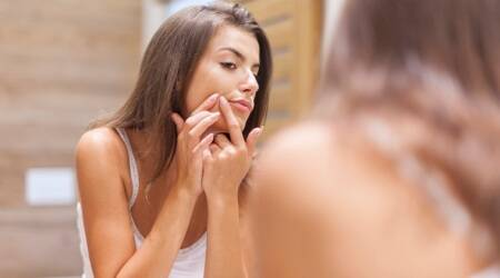 Keep acne at bay; see how