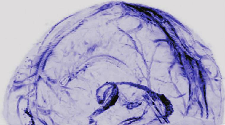 Brain, lymphatic system, US National Institutes of Health study, National Institutes of Neurological Disorders and Strokes, blood vessels, lymphatic vessels, brain immune-system relation, brain scans, autopsy studies