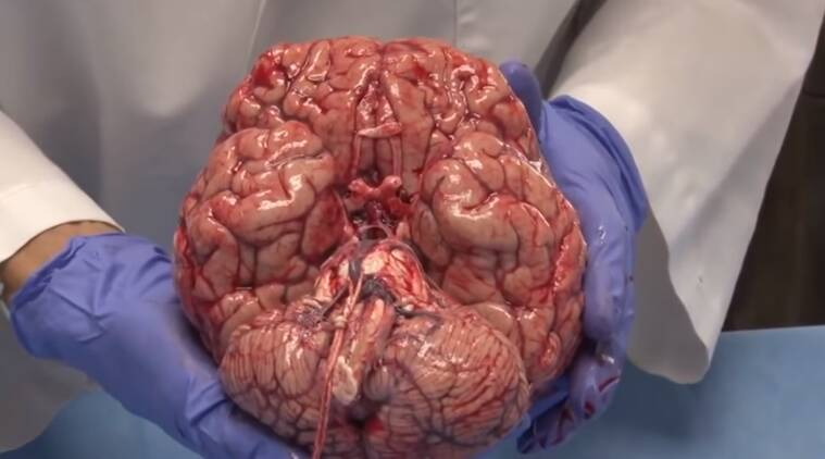 VIDEO: Ever seen a freshly removed brain? It can be damaged by a ...
