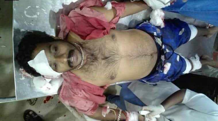 rss, rss activist attacked, rss worker attacked, cpi(m), bjp, jan raksha yatra, political killings,kerala