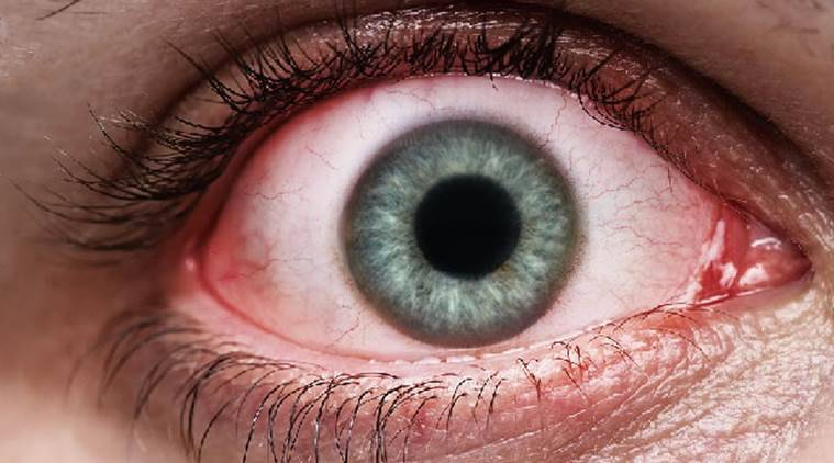 cataract sex chat However if you plan to have  track_data={'type  how soon after cataract surgery can one resume normal (strenuous) sexual activity  healthtap does.
