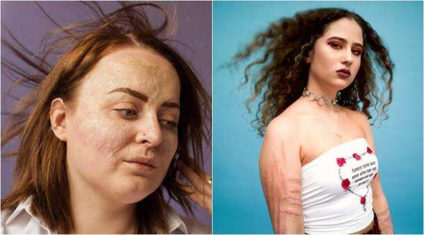 scars, scar photography, photographer captures scars, people with scar, story behind scars, Indian express, Indian express news