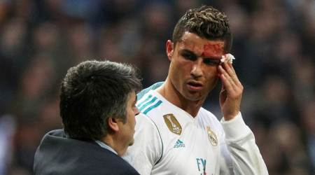 Real Madrid: Cristiano Ronaldo's face cut could have been worse