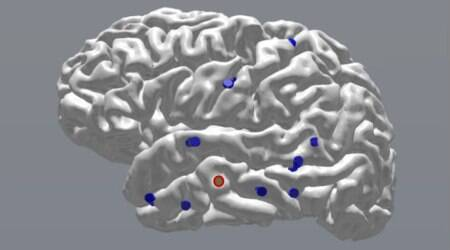 Brain signals, electric impulses, University of Pennsylvania, brain activity tracking, computer monitoring, neurosurgical patients, machine-learning models
