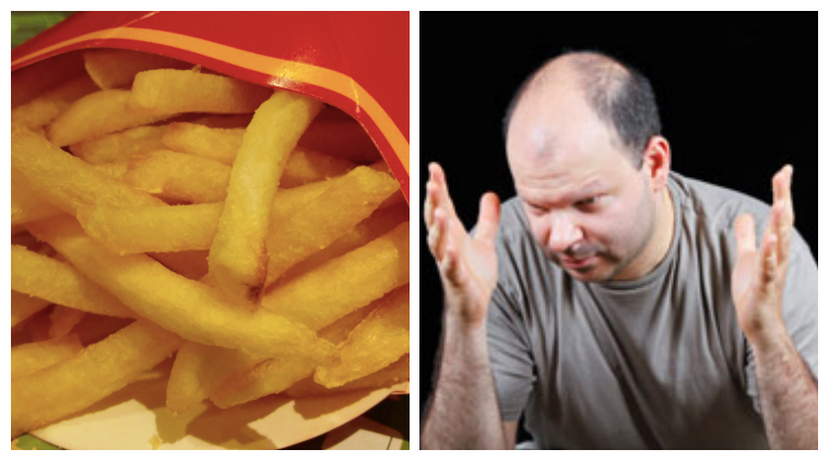 french fries, french fries and mcdonald's, french fries and baldness, can french fries cure baldness, indian express, indian express news