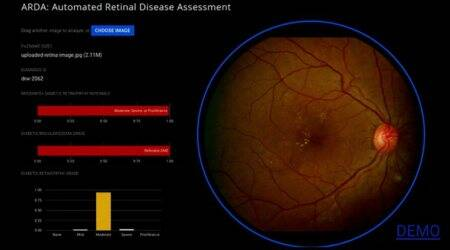 Google AI uses retinal scans to estimate heart disease risk