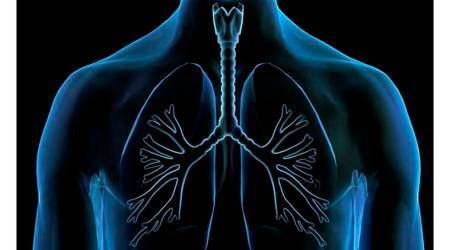 Stem cell transplants bring new hope for lungpatients