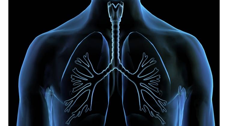lung patients, lung diseases, lung infection, chronic lung diseases, stem cell transplantation, cancer, heart disease, indian express, indian express news