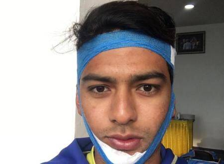 Unmukt Chand slams century in Vijay Hazare Trophy with broken jaw