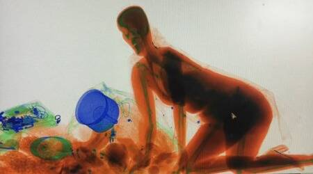 WATCH: This is why a woman in China climbed inside X-ray machine