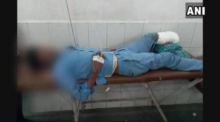 Severed leg used as pillow: NHRC issues notice to Uttar Pradesh govt, seeks report in a month