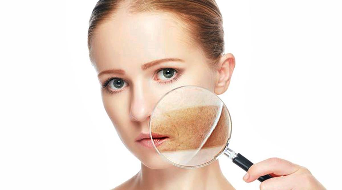 The Cause of Skin Pigmentation and how to Avoid it