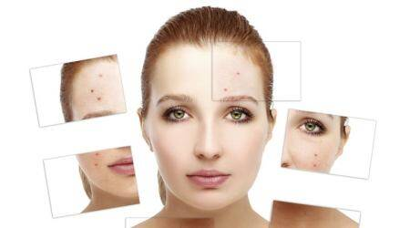 How to get rid of acne insummer